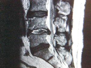 ernia discale L4 L5 300x225 - Ozonoterapia, una valida cura dall'ossigeno