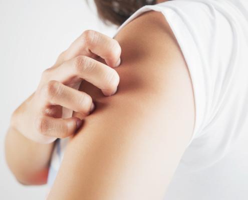 psoriasi 495x400 - Esame per osteoporosi. Chi decide quando è necessario?