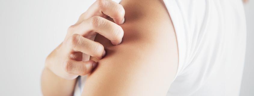 psoriasi 845x321 - Infiammazione della pelle, quando si presenta la psoriasi